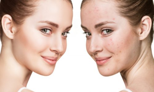 Let's Talk Skin: How to combat PIMPLES and prevent against ACNE