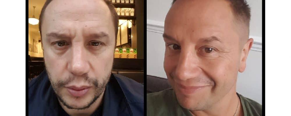 chris wild anti-ageing treatments at vie aesthetics