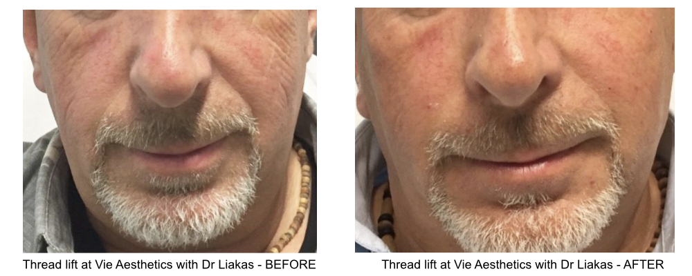 thread lift results from a middle-aged man at Vie Aesthetics, performed by Dr Liakas