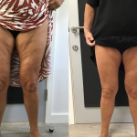 HIFU treatment results for inner thighs at Vie Aesthetics