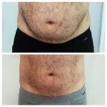 Man showing results of HIFU treatment for abdomen