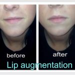 Princess Filler for lips treatment before and after photo