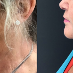 Middle-aged woman showing results of HIFU and Ellanse combination treatment for lower face area