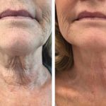 Combination treatment of HIFU for neck and Ellanse for lower-face areas.