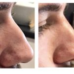 before and after results of a woman with non-surgical nose correction