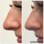 before and after results of a non-surgical nose job to correct an uneven nose