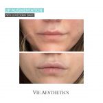 a woman's lips after non-surgical lip filler treatment