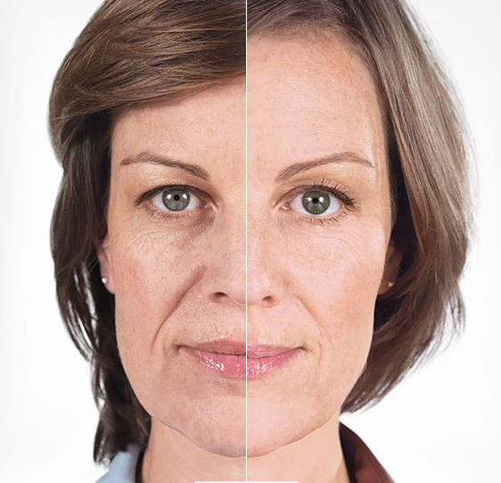 Sculptra® Liquid Facelift