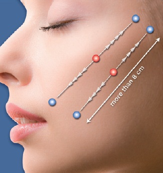Photo showing how the Silhouette Soft uses threads to lift the cheekbone area