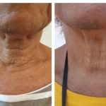 HIFU before and after treatment for neck on a 75-year-old woman