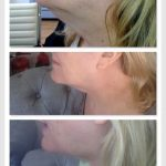 Woman has her double chin reduced with Aqualyx anti-fat injections