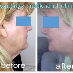 woman has aqualyx to eliminate double chin