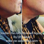 woman has her double chin reduced with aqualyx treatment