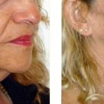 Woman in her 50s after HIFU treatment for jowls.