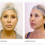 Woman showing before/after results of Silhouette Soft thread lift