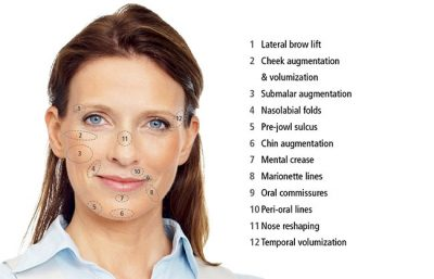Diagram listing the benefits of anti-ageing treatments such as Bio-Filler Plasma Gel and Ellanse