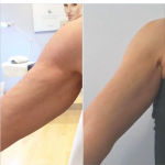 Woman has bingo wings reduced by Endopeel body lifting treatment