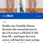 Endopeel treatment with Danielle Mason, performed by Dr Liakas, that appeared in the Daily Mail