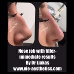 results of a non-surgical nose job with Dr Liakas