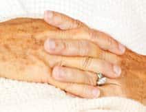 Benign skin pigmentation on the hands