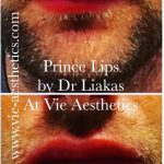 Man showing his before and after results of Princess Filler for lips