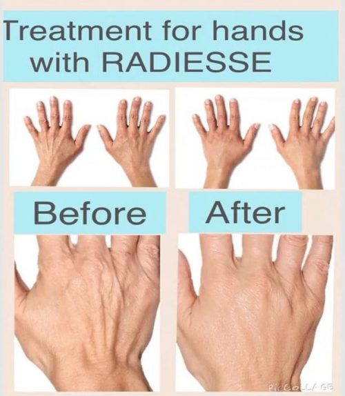 Taking care of those caring hands with Radiesse® volumising filler