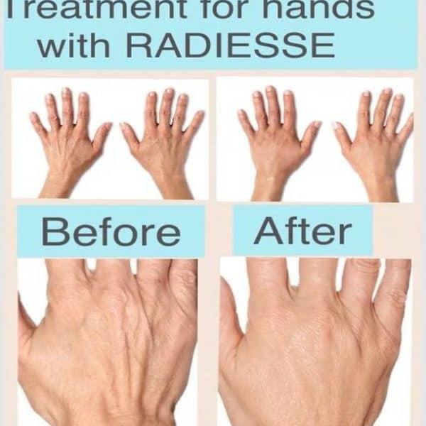 Restults of radiesse dermal filler treatment for ageing hands