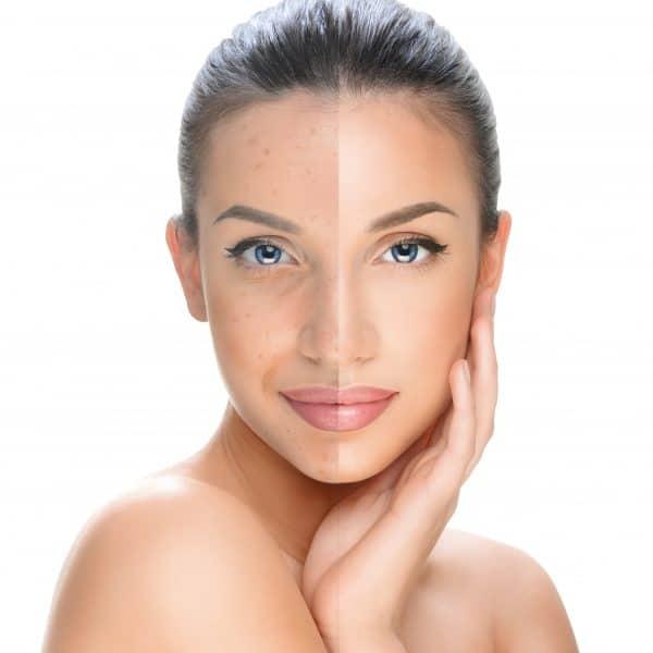 Medical Chemical Peels by ZO Skin Health