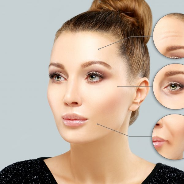 "Botulinum Toxin Anti-Wrinkle Injections (""Botox®"")"