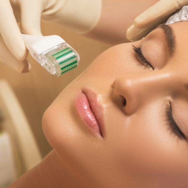 woman has skin rejuvenation treatment with the dermapen or dermaroller