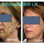 Woman showing results of Silhouette Soft on cheeks
