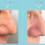 O.F.F. treatment for thread vein removal in the nose, before and after at Vie Aesthetics