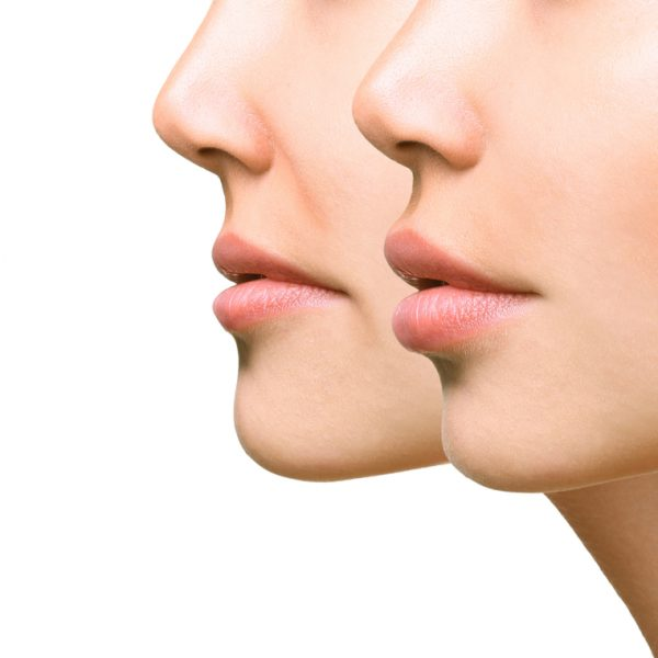 Lips Augmentation with Filler