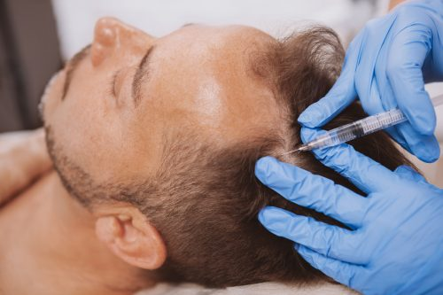 Hair loss and pattern baldness: an exciting breakthrough?