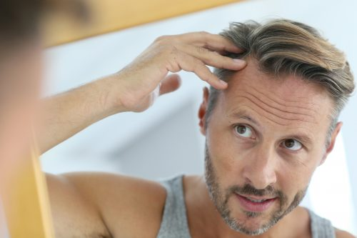 Seven things you wish you knew about hair transplants