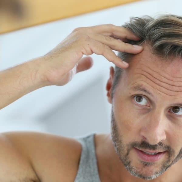 Man with hair loss worries considers VieStem Hair with Regenera Activa treatment