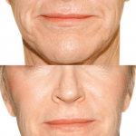 Results of Radiesse liquid facelift adding volume to lower face and nasolabial folds