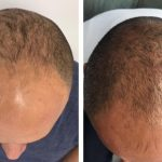 Five month results of VieStem Hair with Regenera Activa hair loss treatment