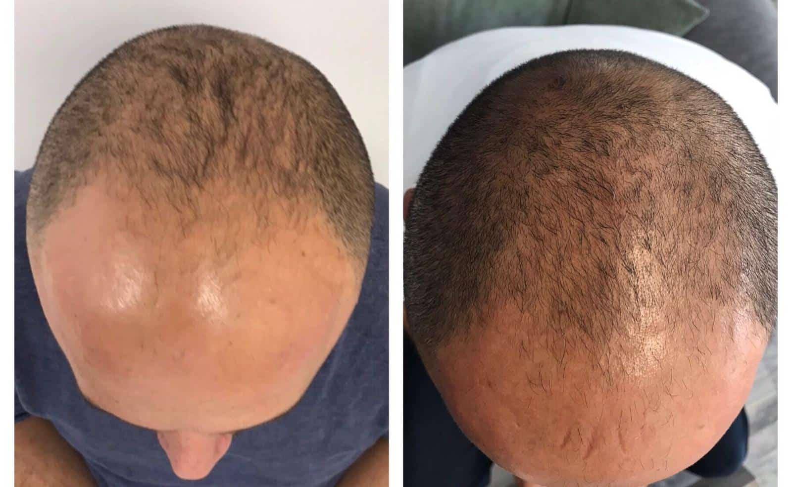 Halt your hair loss with VieStem Hair and Regenera Activa!