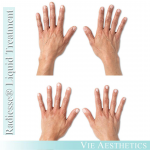 Results of Radiesse liquid treatment for ageing hands