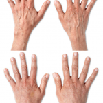 Results of Radiesse to add volume to ageing hands