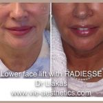 woman showing results of adiesse liquid facelift treatment for lower face