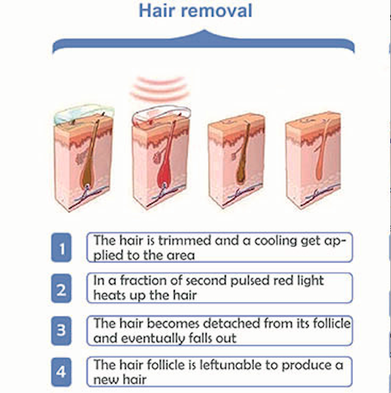 Diagram showing how Super Hair Removal (SHR) works on the skin