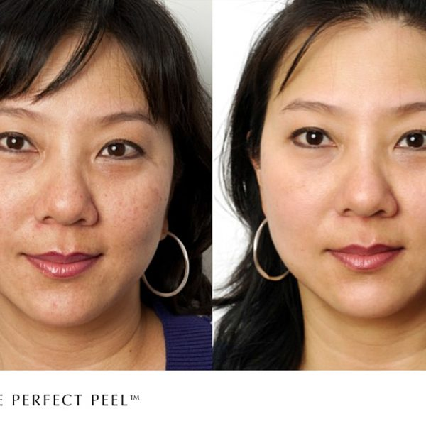 The Perfect Peel treatment before and after photo