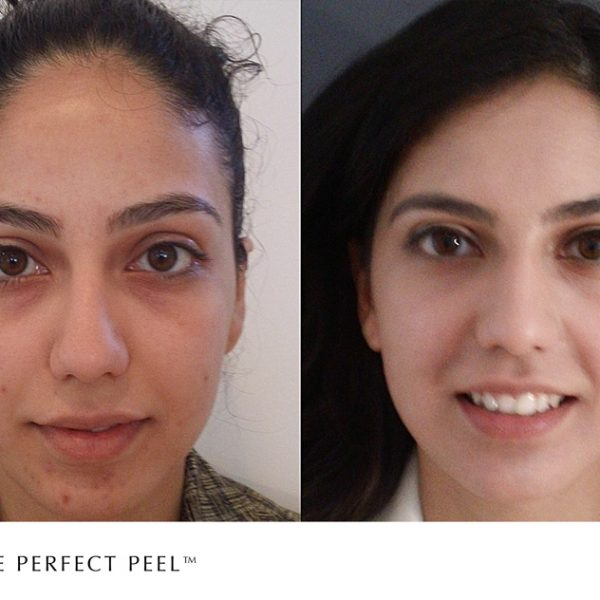 The Perfect Peel treatment before and after