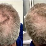 After 3 months with VieStem Hair with Regenera Activa by Dr Liakas