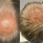Results at 5-6 months after VieStem Hair with Regenera Activa treatment for thinning crown