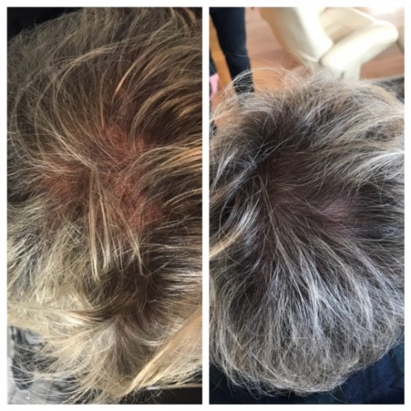 Middle-aged man shows thicker hair after VieStem Hair with Regenera Activa treatment