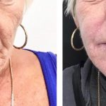 Woman in her 50s showing results of Perfect Peel, Ellanse and microneedling dermaroller treatments at Vie Aesthetics