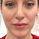 showing the before and after effects of a of jaw filler treatment, known as Texas Jaw